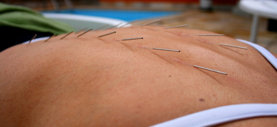 Acupuncture poolside
