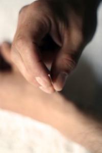 A patient receives acupuncture.